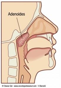 Adenoides,  amígdalas faríngeas, vegetaciones